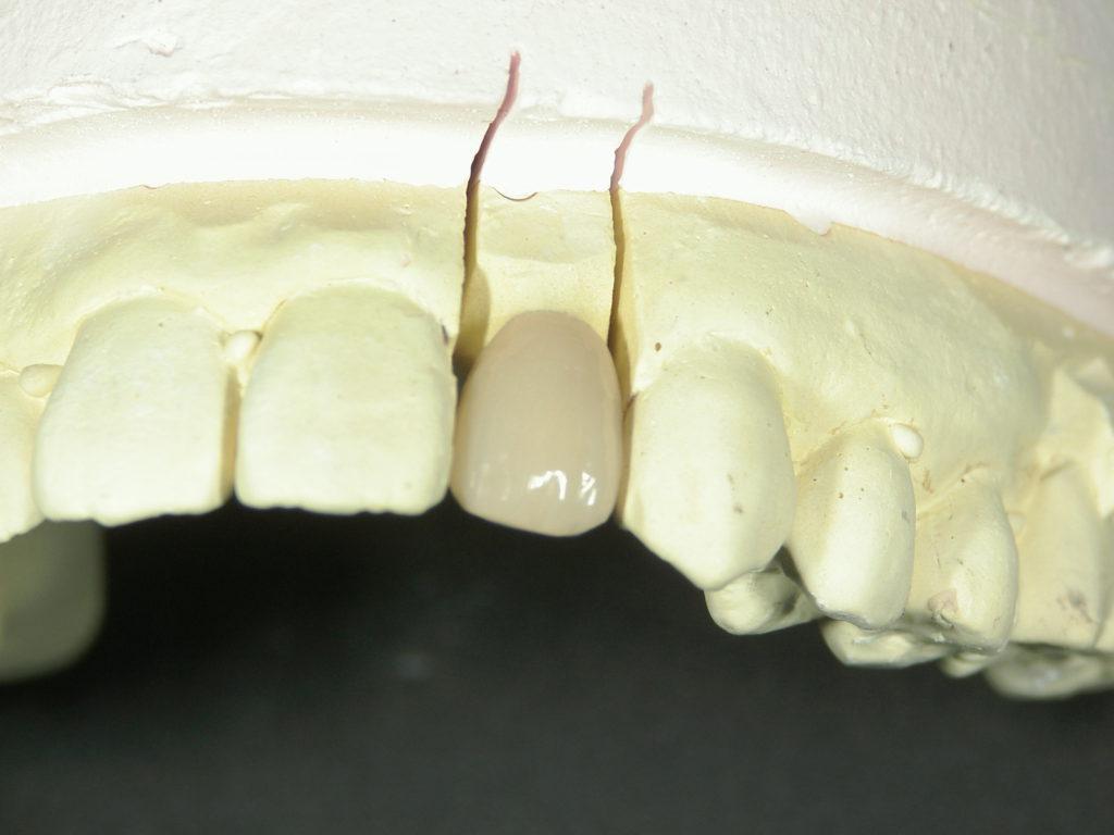 保険の前歯の被せ